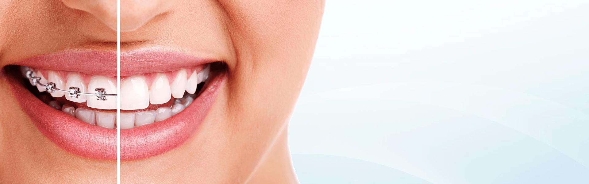 Ortodonti Diş tedavisi